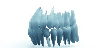 implant-dentar-vodita